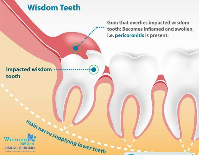 wisdom, tooth, tooth extraction, smile