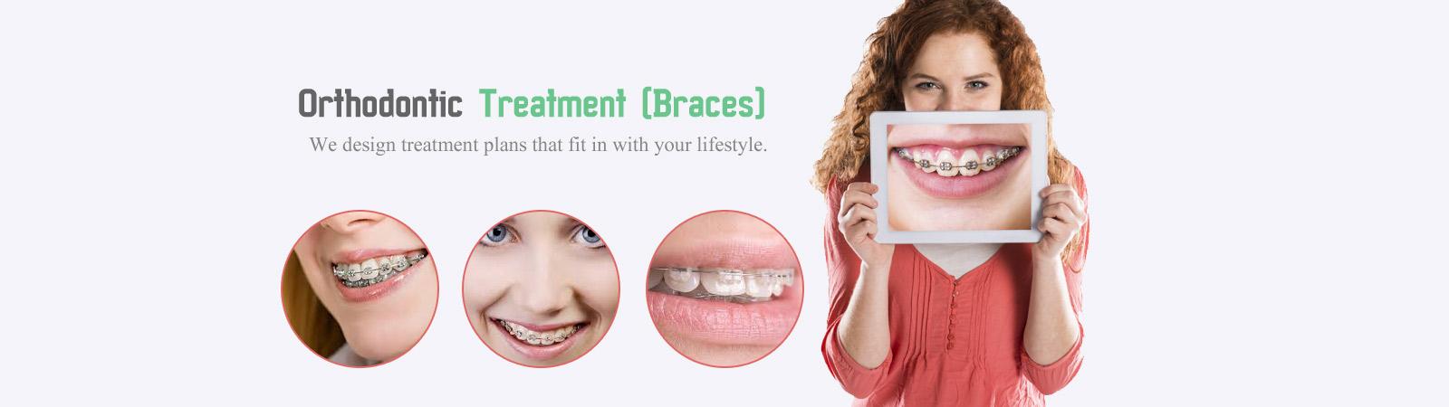 orthodontics in miranda,dental implants,clear braces,cosmetic dentist,dentist open on sunday